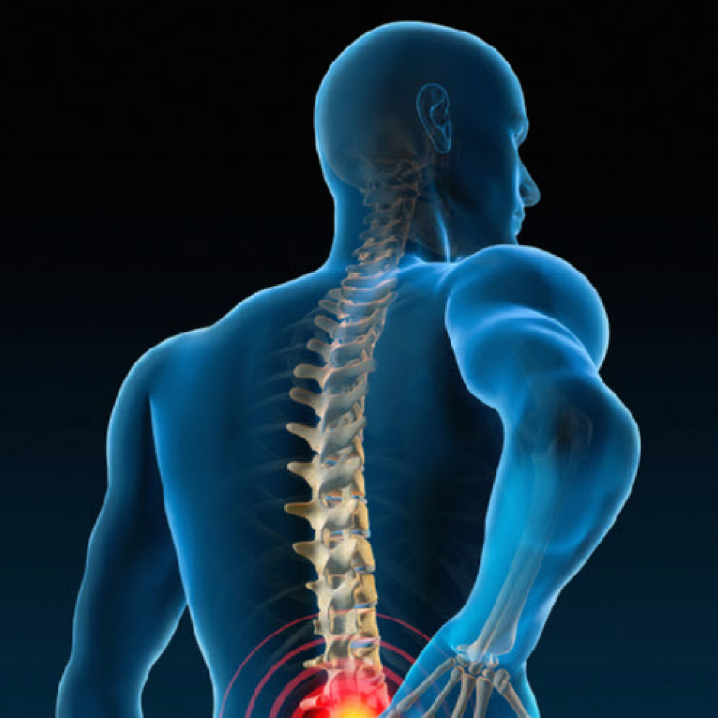 Chiropractic Effectiveness for Treating Low Back Pain